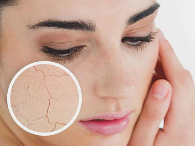 Tackle Your Dry Skin With Ayurveda