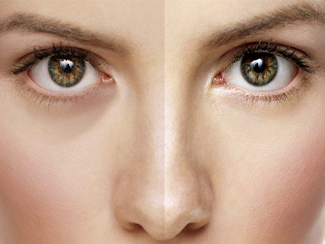 This one trick will help you remove dark circles fast