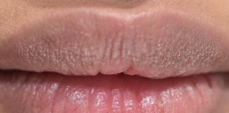Do These To Moisturize Your Lips This Winter