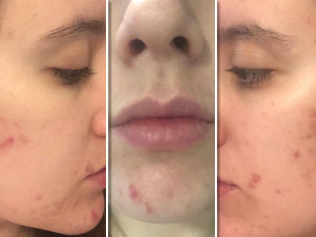 Get Off Adult Acne Naturally