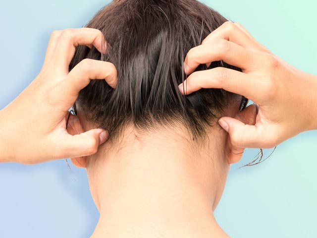 Itching Head Frequently? Try These DIY Remedies