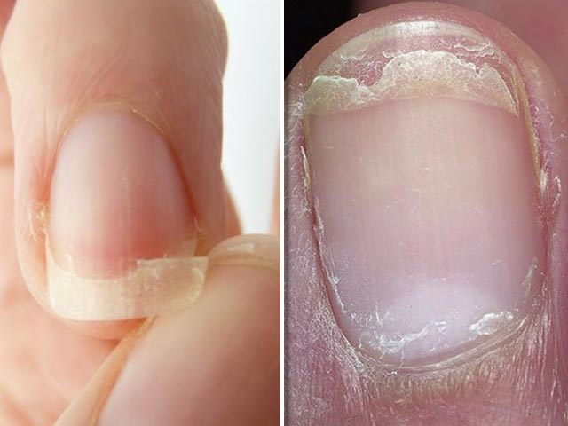 5 Amazing Tips For Fragile Nails