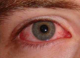Having Bloodshot Eyes? Try These Remedies